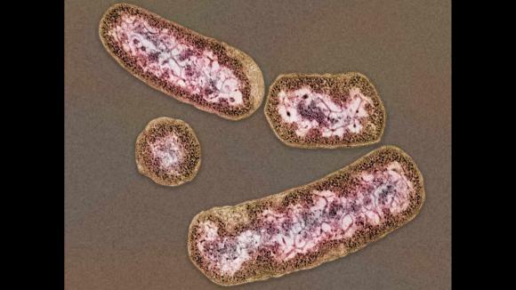Une forte proportion de bactéries Prevotella entraîne une perte de poids