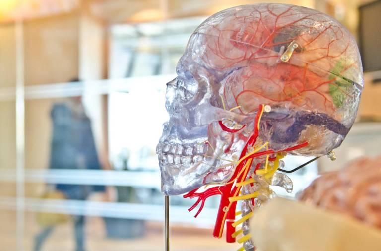 Une découverte majeure pour les troubles neurologiques