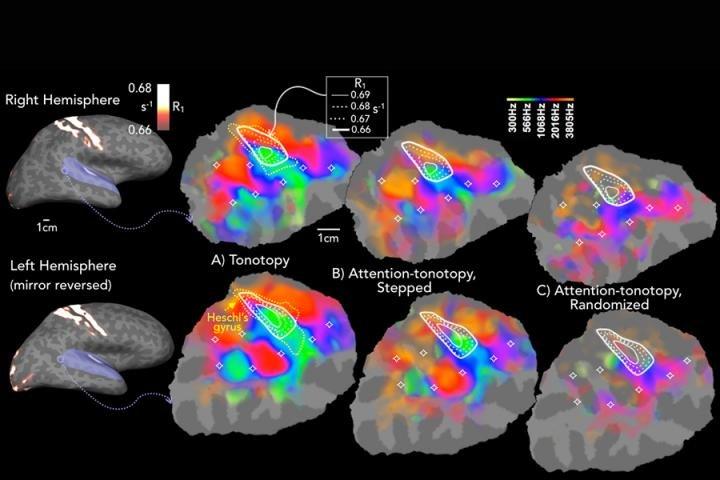 Cartographie de l'attention sélective auditive du cerveau