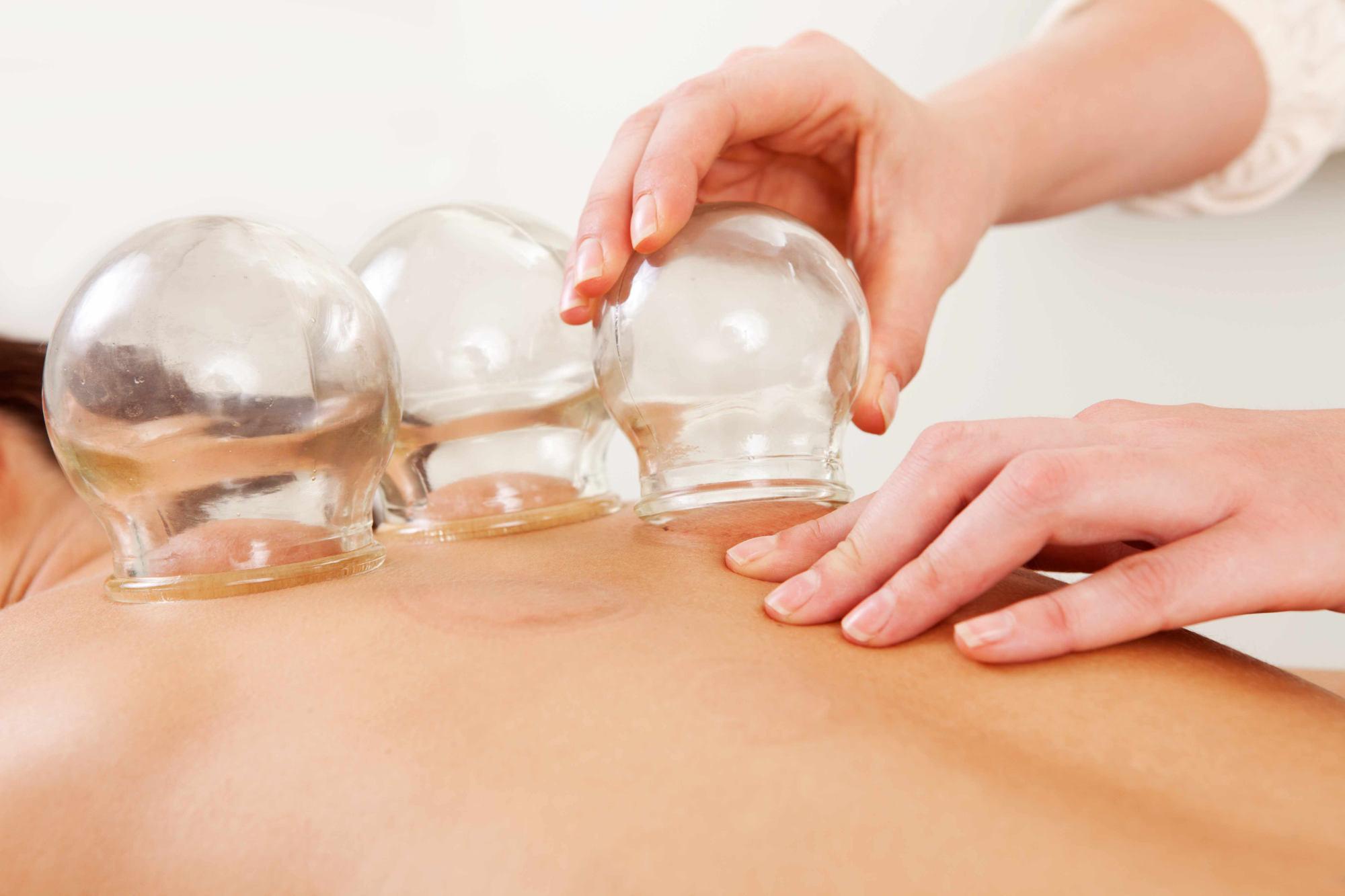 La cupping thérapie : comment ça marche ?