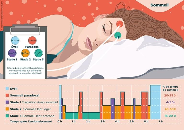 Les différents stades du sommeil