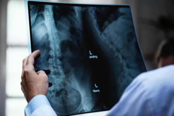 Trop de vitamine A = risque de fractures osseuses